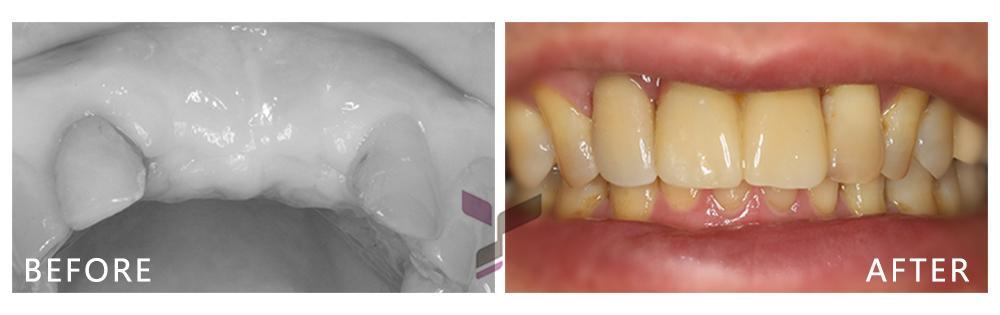 悠仕牙醫-植牙案例