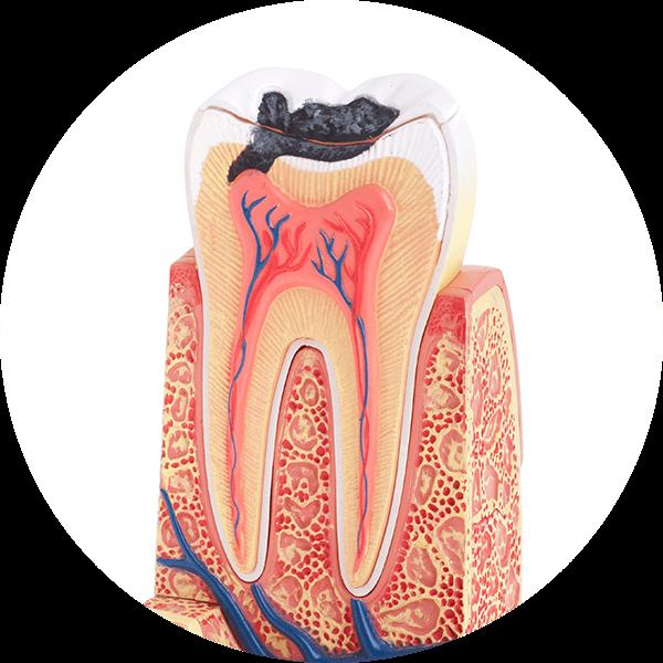 悠仕牙醫-活髓保存