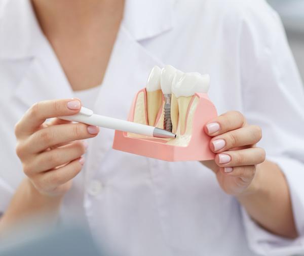 為什麼要植牙