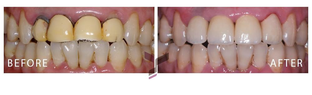 前牙瓷冠案例-劉先生1